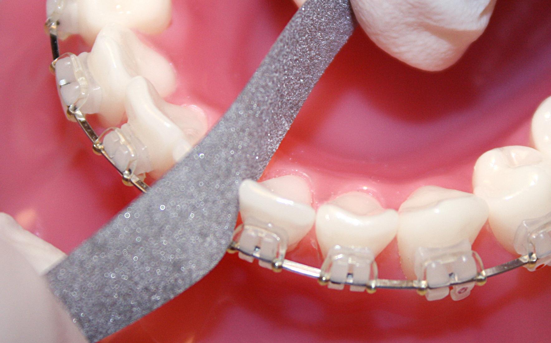 Zahnschmelzreduzierung zur Beseitigung von Engständen
