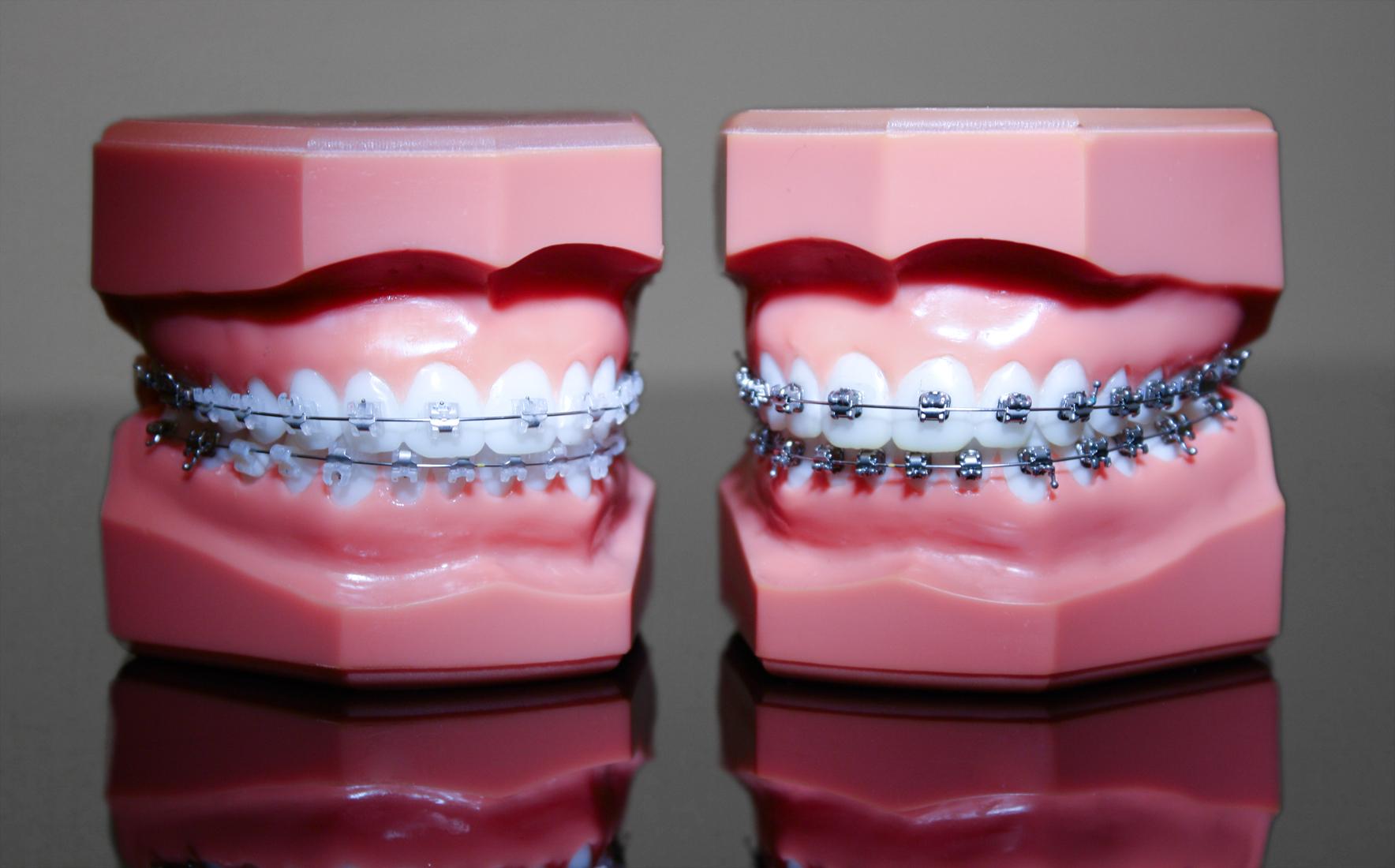 Festsitzende Zahnspangen: Selbstligierende Brackets aus Keramik und Metall