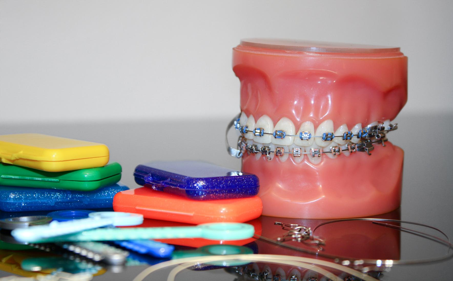 Behandlungszubehör für eine festsitzende Zahnspange