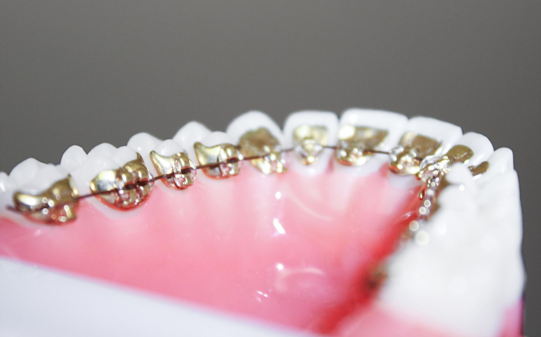 Brackets an der Innenseite des Zahnes