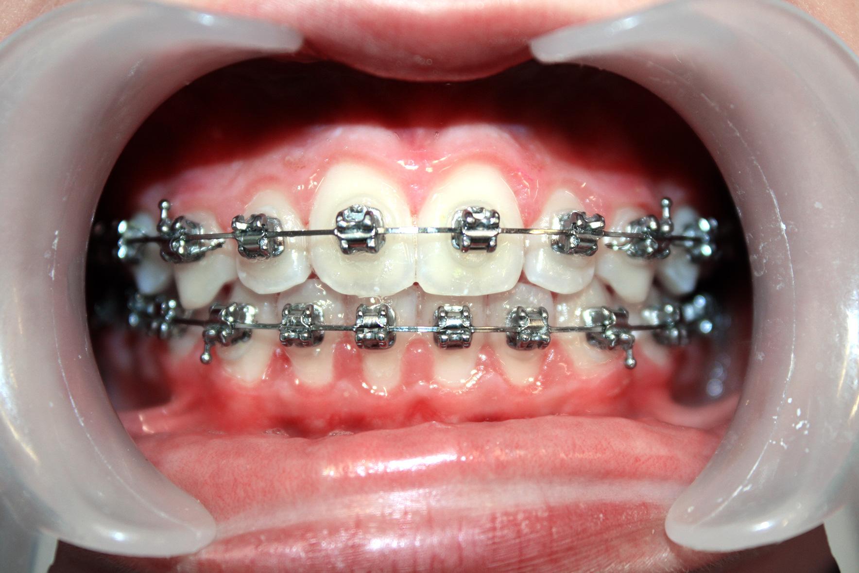 Nachher: Säuberung und Pflege der Zähne nach dem kieferorthopädischen Schutzprogramm