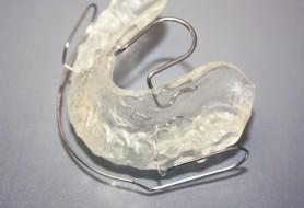 kieferorthopaedie-linge-leistungen-bionator-draufsicht